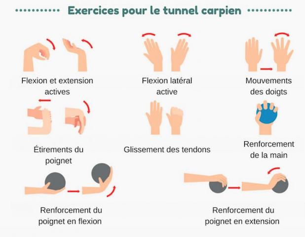 Le syndrome du canal carpien, exercices