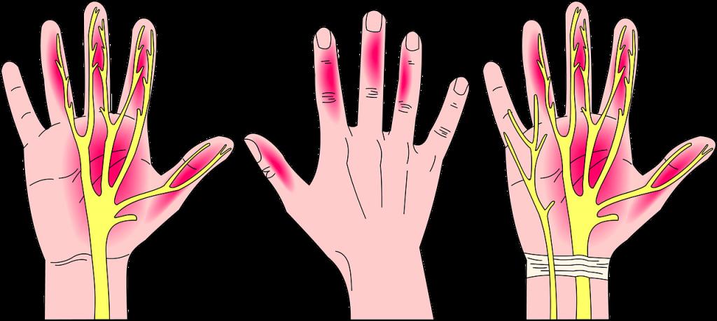 Le syndrome du canal carpien, symptômes